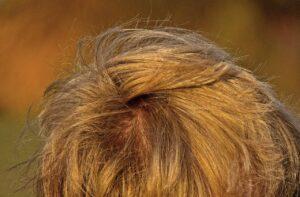 Haarausfall - Strapaziertes Haar - Naturtreu Zauberhaft